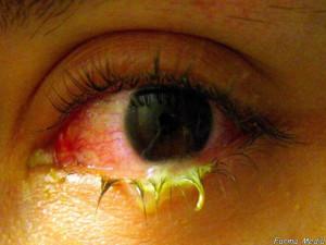 ITUKARTU - Benarkah Sakit Mata Bisa Ditularkan Melalui Tatapan