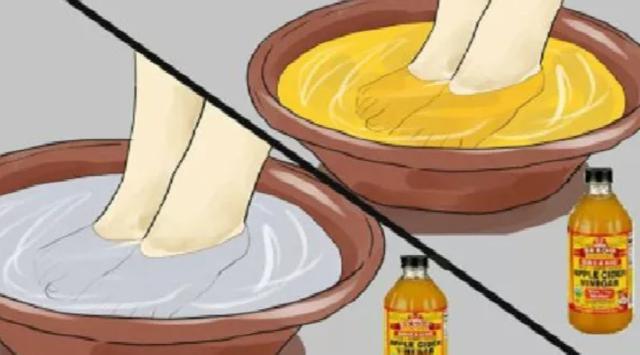 Tips Bersihkan Racun di Tubuh dengan Merendam Kaki