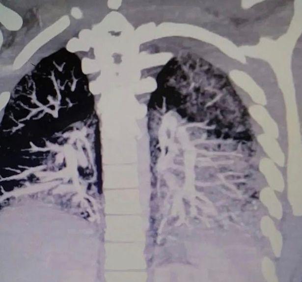 Gambar X-ray paru-paru penuh dengan minyak milik Anthony Mayo.
