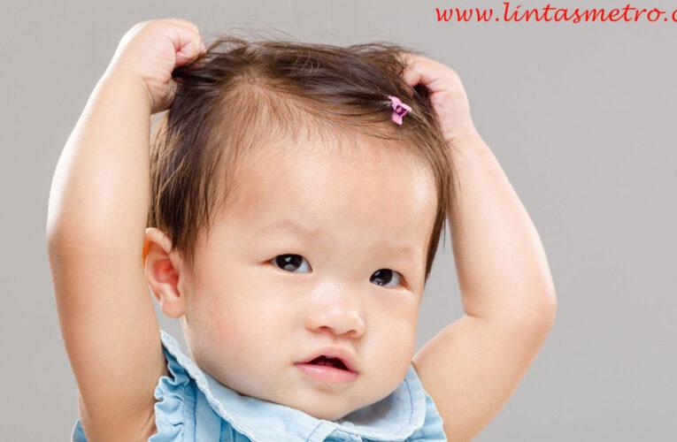 Wajib di Ketahui Penyebab Rambut Anak Susah Tumbuh!