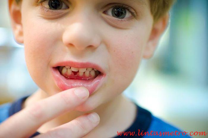 Hindari 5 Kebiasaan ini Agar Susunan Gigi Anak Tetap Bagus